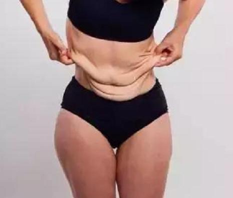 你還敢抽脂減肥嗎?70公斤少女花萬元抽脂後,崩潰不已
