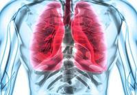 專家告訴你,6種異樣的咳嗽需警惕肺癌