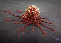 體檢正常,半年後查出癌症晚期!腫瘤標誌物靠譜嗎?