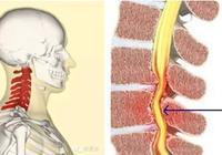 片子報告頸椎病就是頸椎病嗎?頸椎病誤區你有幾個