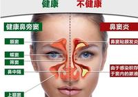 引起鼻竇炎的原因有哪些?患鼻竇炎應注意些什麼?