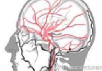 癲癇百科:特殊類型癲癇之反射性癲癇!