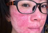激素臉治不好?知道這幾個方法試一試皮膚可能就不紅不癢了