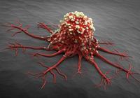 醫生告誡:癌症是世界第一殺手,誰不預防誰先走!