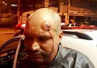 他,腦袋被子彈擊中,以為石頭,堅持跑下賽程,卻有了意外收穫