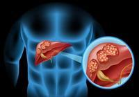 肝硬化到底能活多久?特別是有病毒的肝硬化