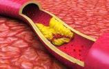 血管內垃圾太多,只要注意這些飲食調理,我們自己也能清理血管