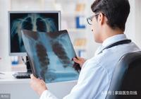 """肺癌早期無聲無息?4個""""報警信號"""",你可能沒有留意到"""