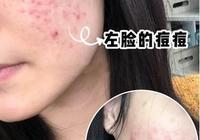 臉上有痘印(紅色的)還有痘坑,有什麼方法可以去除?