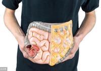 """腸癌多是""""吃""""出來的,吃飯時有這2個習慣的人,快做腸鏡檢查"""