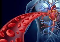動脈硬化的治療方法有哪些 讓你遠離動脈硬化的煩惱!