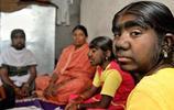 印度毛孩三姐妹,原因是父親是狼人