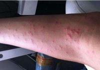 這5種皮膚病,夏天寶寶易中招,怎麼預防一篇全get!