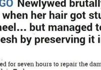 土耳其女子遭收割機扯掉頭皮,父兄及時保存冷凍,縫合後容貌如舊