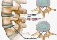為什麼現在那麼多的人腰椎間盤突出?