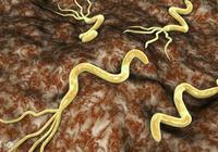 感染了幽門螺旋桿菌會有哪幾個比較明顯的表現?