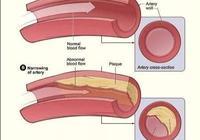 吃洋蔥可軟化血管?吃木耳能清理血管?錯!這樣才能讓血管更長壽