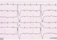 最常見的心臟病,心臟會突然提前挑一下,有些胸悶心慌源於該病