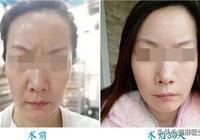 真相來了 | 做面部提升手術會加速衰老嗎?