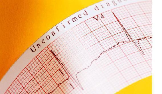 心肌梗死患者,如何預防心肌梗死再發生和併發症?