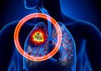 肺癌晚期是什麼意思?應該怎麼辦?還可以治癒嗎?