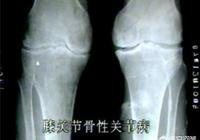 膝關節不好(下蹲時膝蓋有疼痛感)能跑步嗎?如果可以跑的話,應該注意什麼?