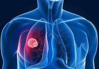 肺結核與肺癌只差一步之遙,做好3件事,扼殺癌變可能