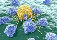 """我們怕癌症,癌症卻怕這""""1式3招"""",只要學會,癌症都溜走!"""