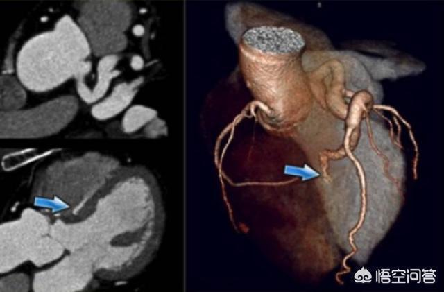 做冠脈CT時檢查出有心肌橋,其他心臟血管都挺好,這正常嗎?該怎麼辦?