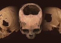 印加人掌握了人類骷髏鑽孔的可怕實踐