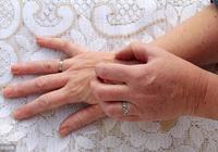 治療溼熱皮膚病,用這一對藥,有良效!