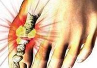 如何才能預防痛風石,不讓它產生呢?