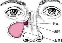 如何預防鼻竇炎