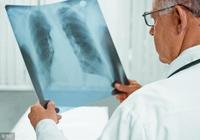 肺結核嚴重嗎,肺結核的傳播途徑是什麼
