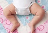 """要不要糾正寶寶的""""青蛙腿""""? 可惜的是好多媽媽還在聽奶奶的"""