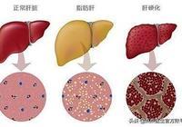 脂肪肝可一步成癌!避免這5個因素,教你遠離危險區