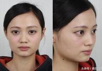 玻尿酸隆鼻打造挺鼻立體小V臉
