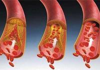 心血管堵塞吃什麼好?帶你認識心血管堵塞