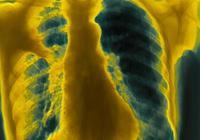 什麼是肺炎?