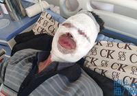 61歲丈夫衝進火場抱出癱瘓妻子