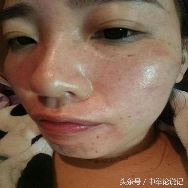 女人為什麼會長斑,美白祛斑這幾個美膚不能錯過哦