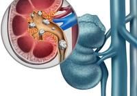 黑木耳預防腎結石 6類食物能預防腎結石