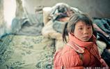 實拍:殘疾孩子的家,燙傷4年沒錢醫治,與80歲奶奶相依為命