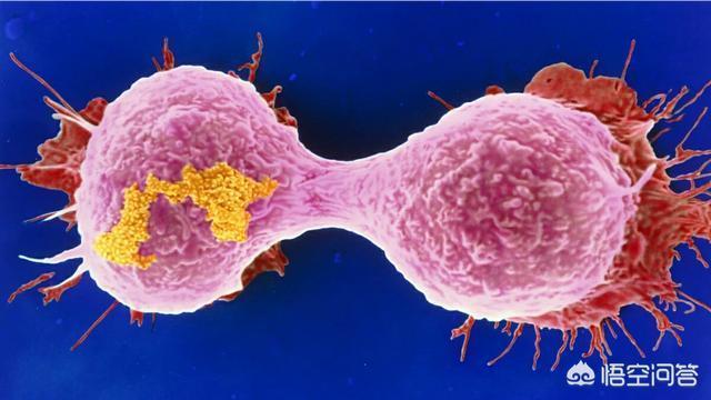 很多癌症患者病灶都切除了,為什麼還會復發?