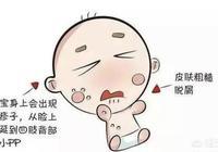 嬰幼兒溼疹是什麼原因引起,怎麼護理?