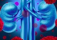 腎癌是一種很難治癒的疾病 得了腎癌還能活多久