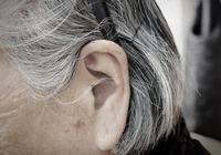 蜂王漿為什麼能防治白髮