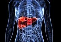 肝臟有結節,一定是肝癌嗎?醫生的話給他吃了一顆定心丸