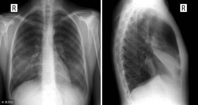 肺炎和肺癌有啥區別?如何預防肺癌