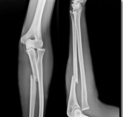 骨折後能否痊癒?